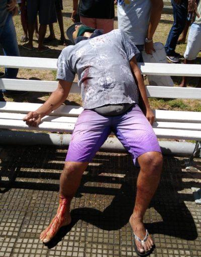 IMAGENS FORTES: Homem é assassinado a tiros na Praça dos ...